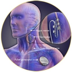 5 24 10 vagus2502 VNS implant might fix the ringing in your ears