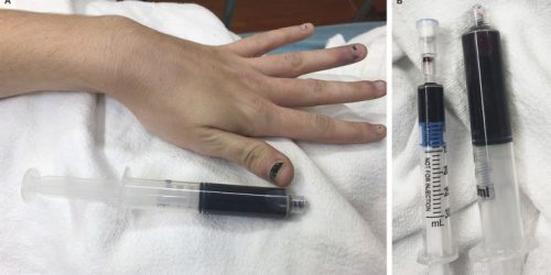 Blueish woman with chocolaty blood highlights rare risk of common anesthetic